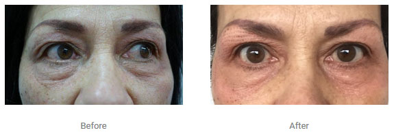 non surgical eye lift one