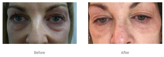 non surgical eye lift three