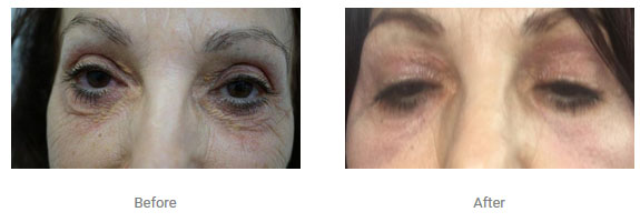non surgical eye lift two