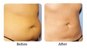 muffin top love handles before and after fat freezing