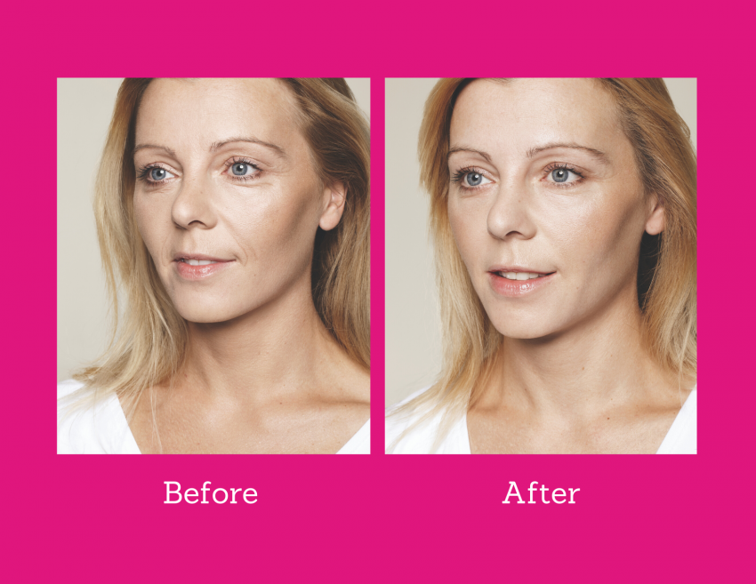 before and after pictures showing skin is more hydrated after applying hydrophilic hualuronic acid